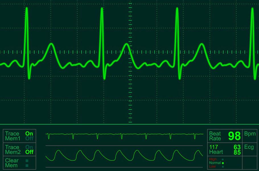 Image: techbeat.com
