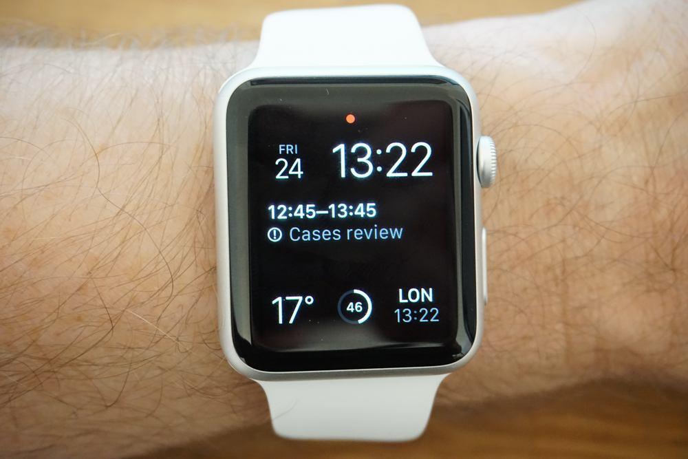 applewatch-unbox-13