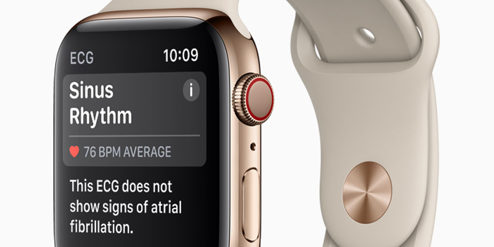 photo image Apple Watch Series 4 more than 98% accurate at detecting AFib, finds study