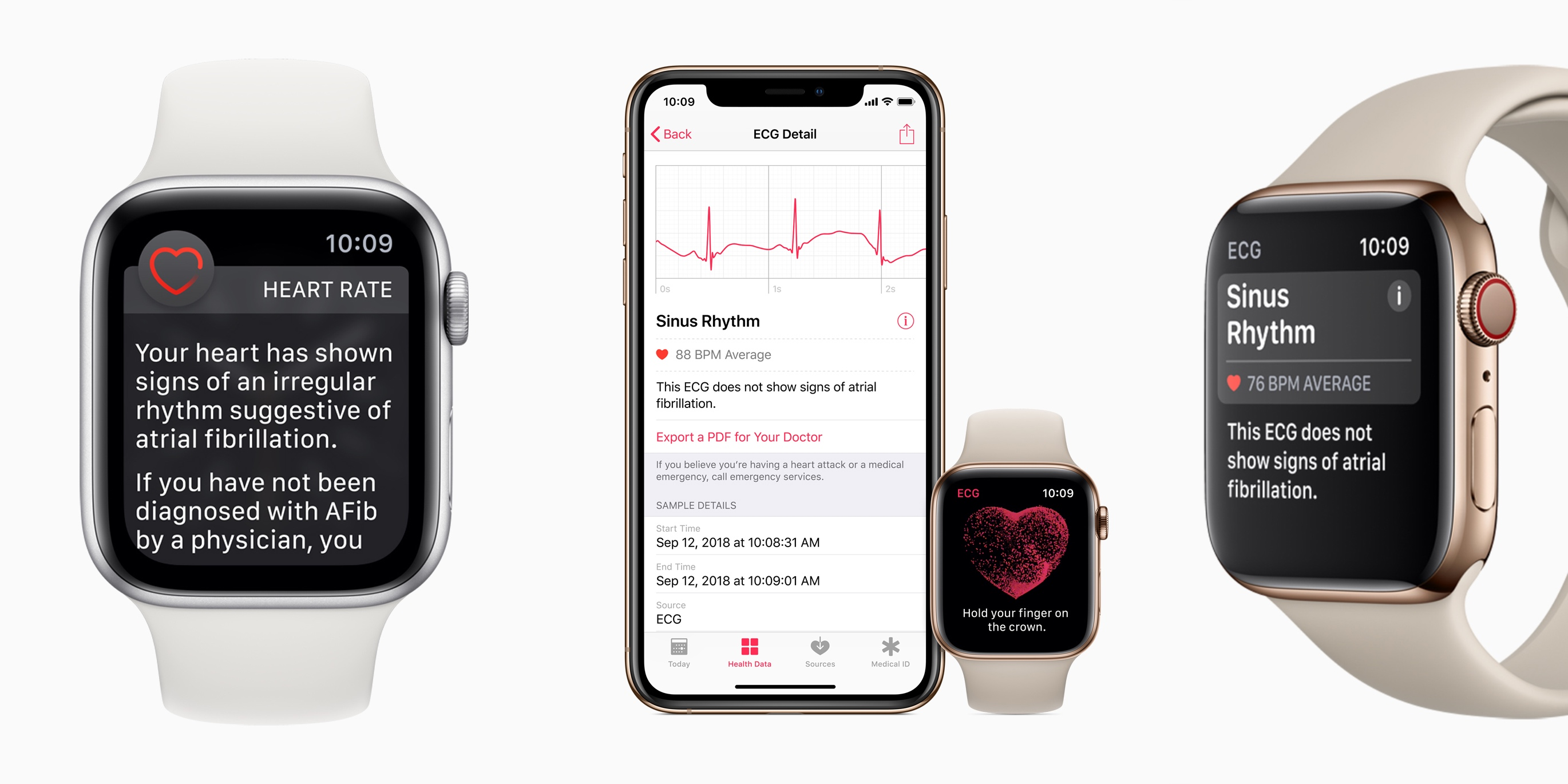 Mayo Clinic sees big success with AI detecting weak heart pumps via ECGs, could work with Apple Watch in the future
