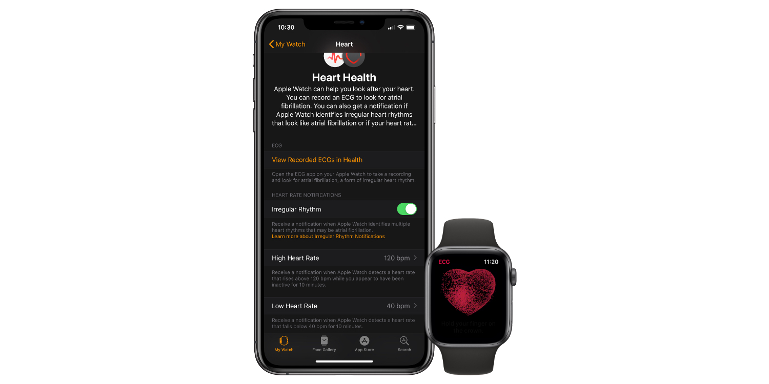 NYU doctor sues Apple over Apple Watch's ability to detect atrial fibrillation
