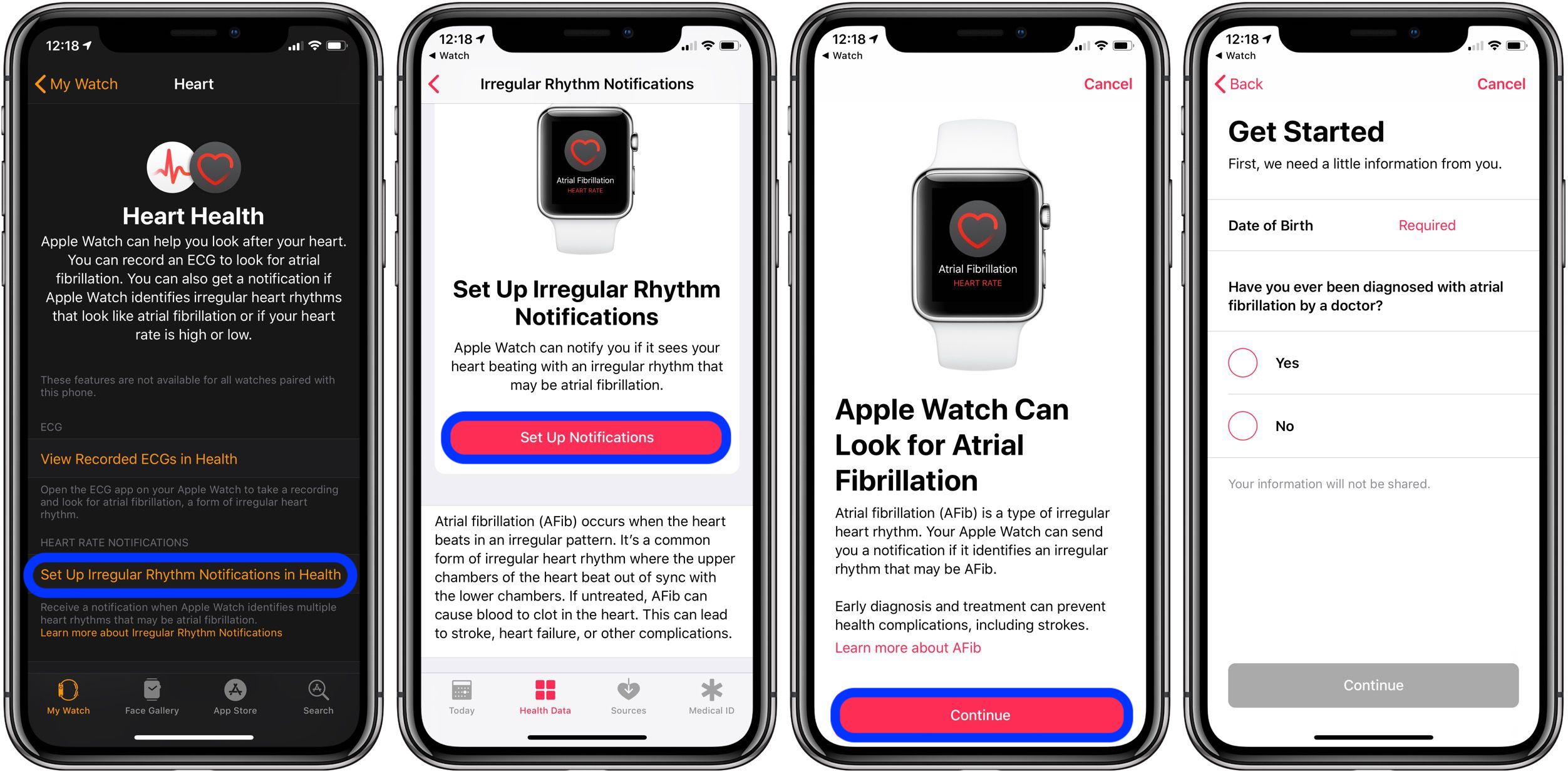 Apple Watch heart notifications