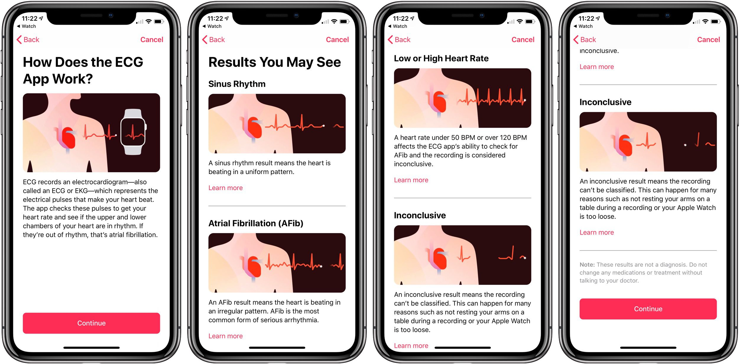 Apple Watch ECG electrocardiogram