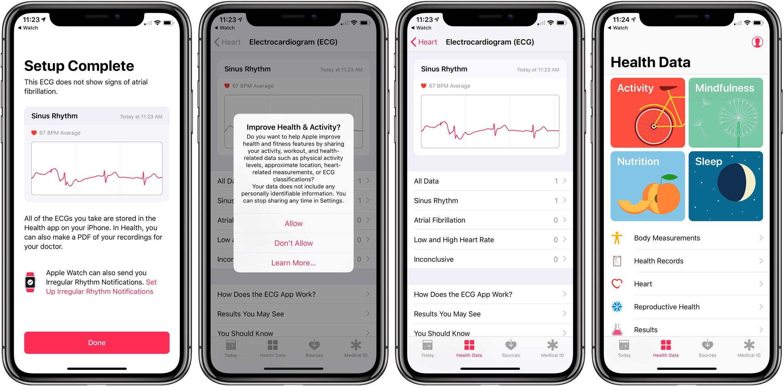 Apple Watch ECG electrocardiogram