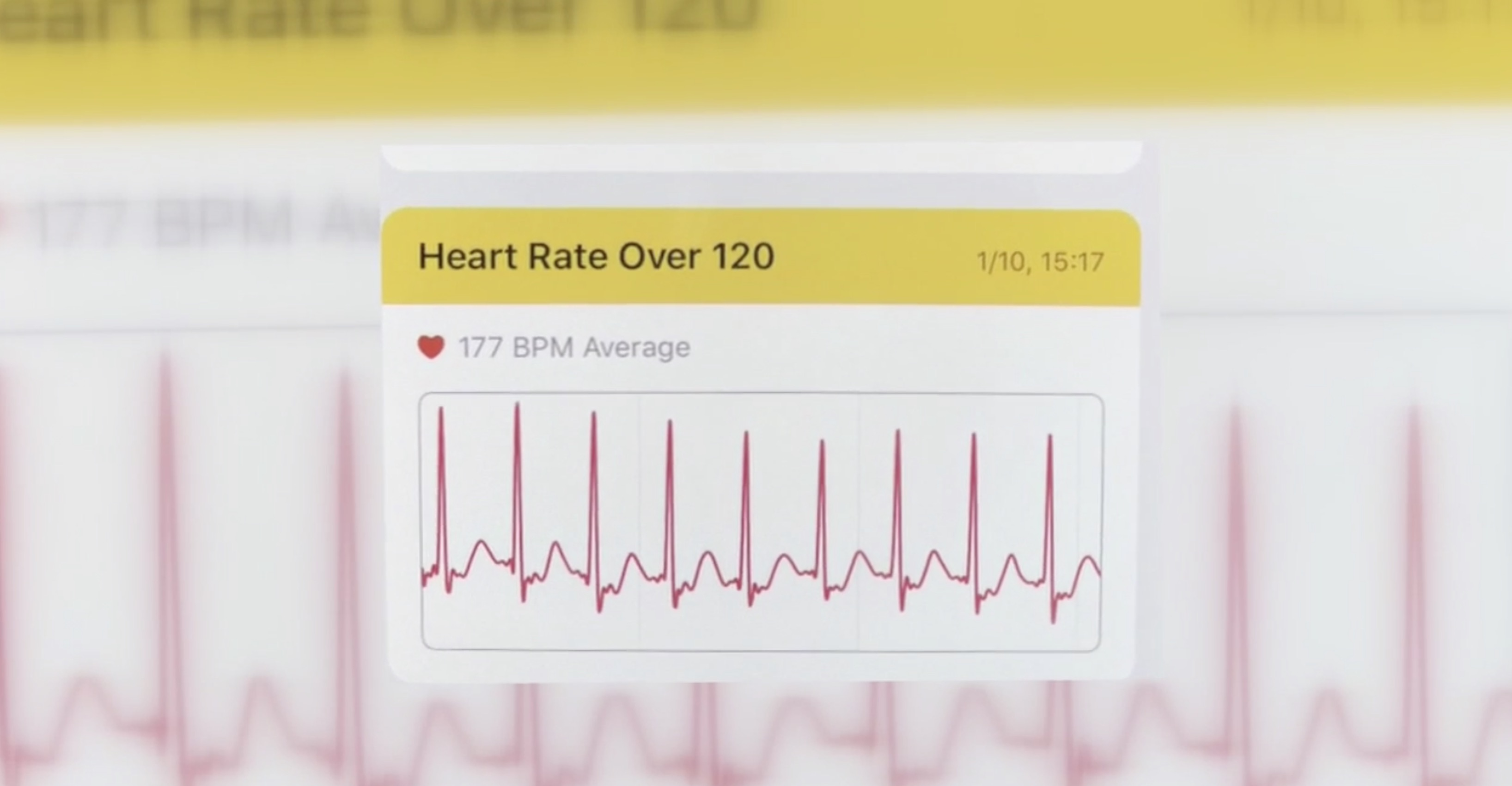 Apple Watch heart condition diagnosis high heart rate