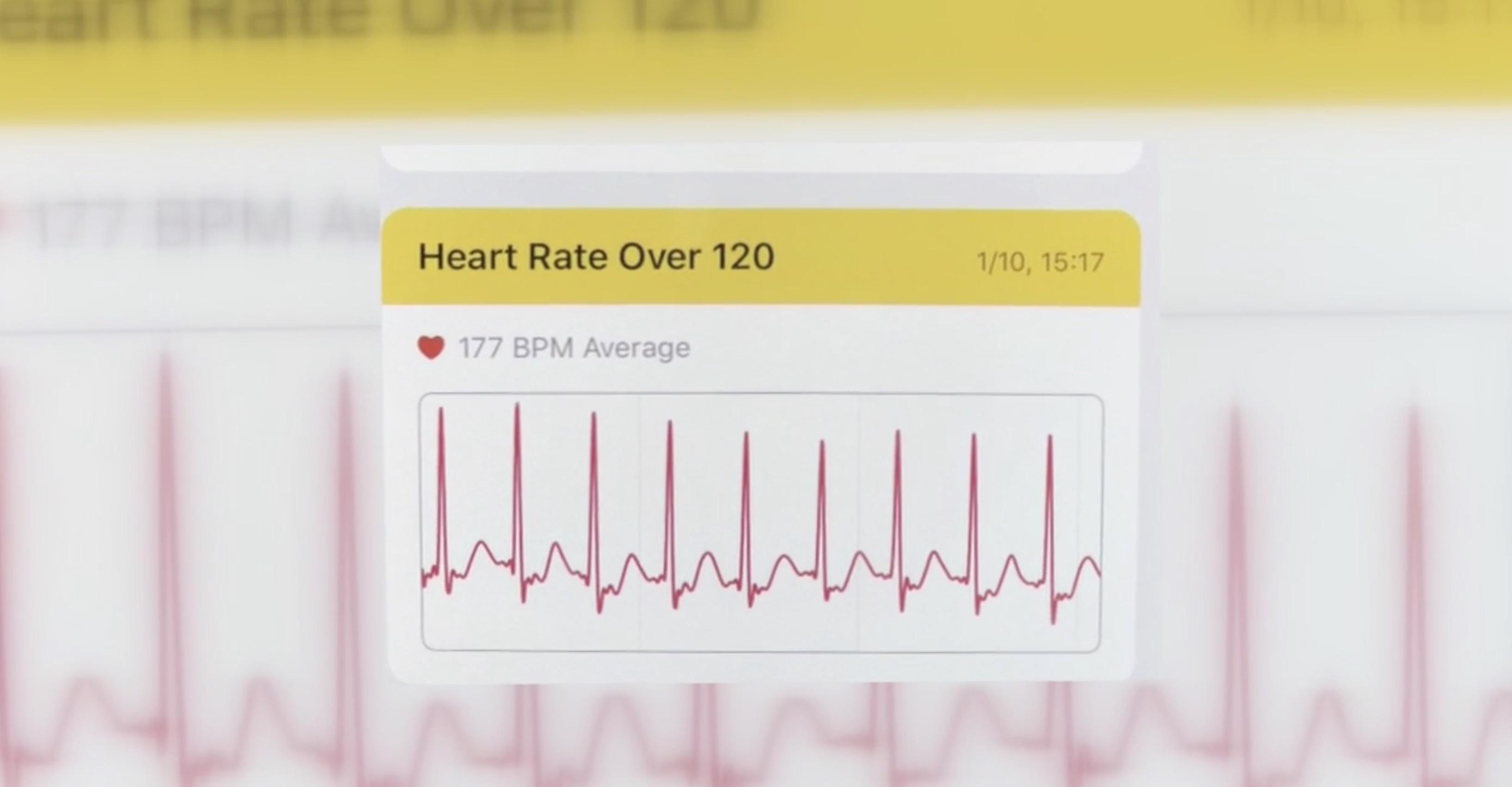 Apple Watch Heart Disease Diagnosis High Heart Rate