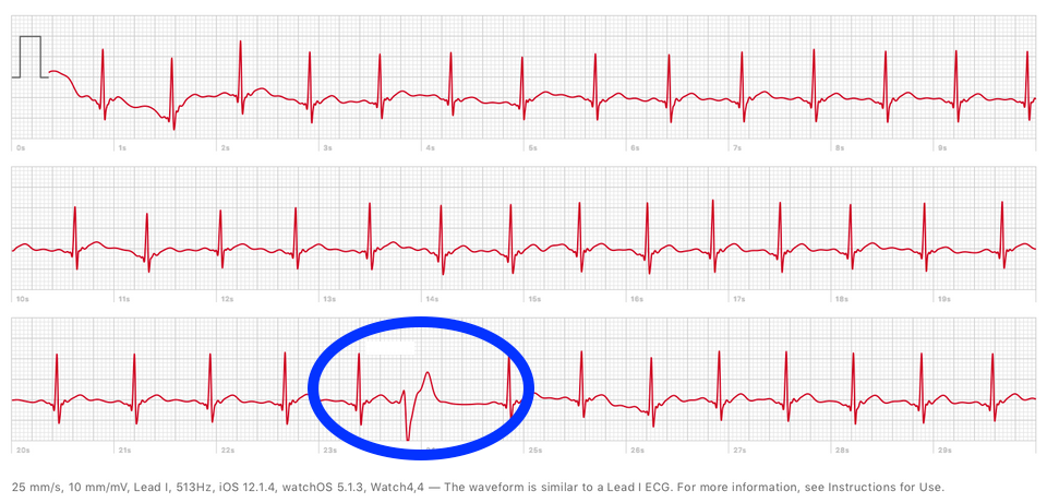 Pemature ventricular contractions
