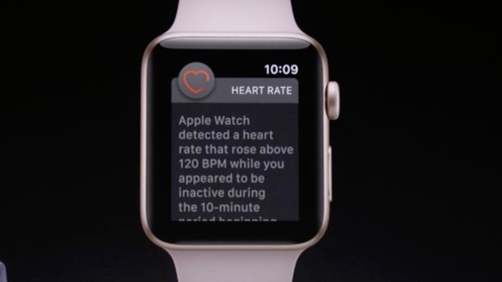 Reddit user says Apple Watch saved his life helping detect