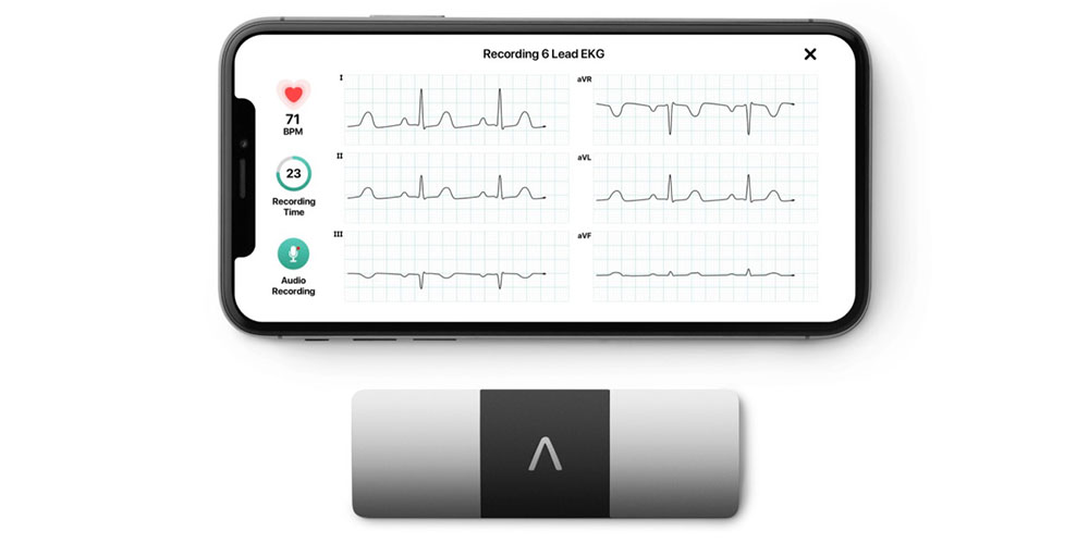 AliveCor's KardiaMobile 6L provides FDA-approved 6-lead ECG from tiny iPhone accessory