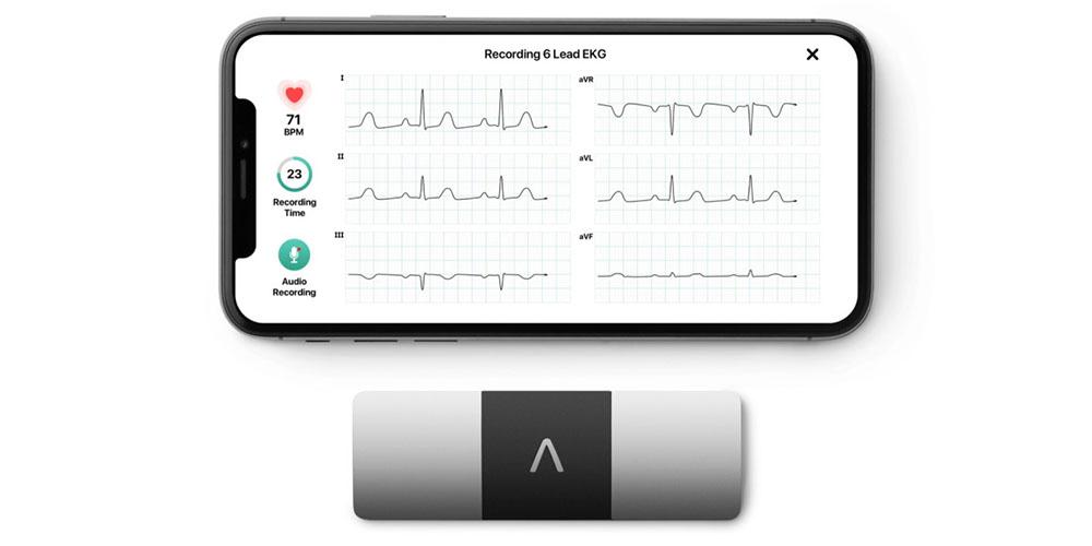 KardiaMobile 6L provides 6-lead ECG
