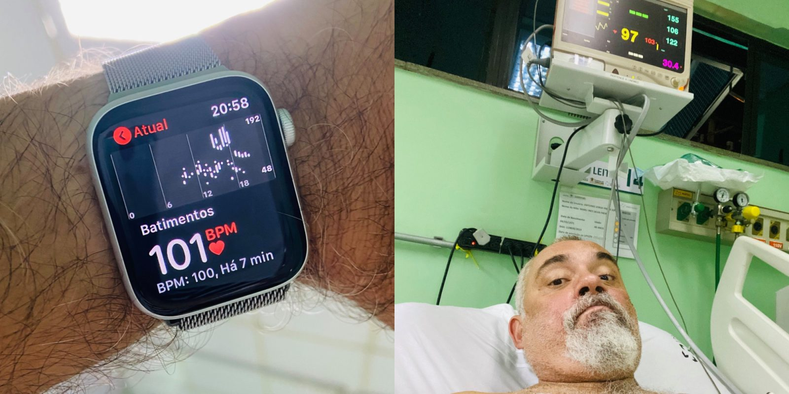 Apple Watch saves Brazilian man after heart alerts lead to life-threatening tachycardia diagnosis