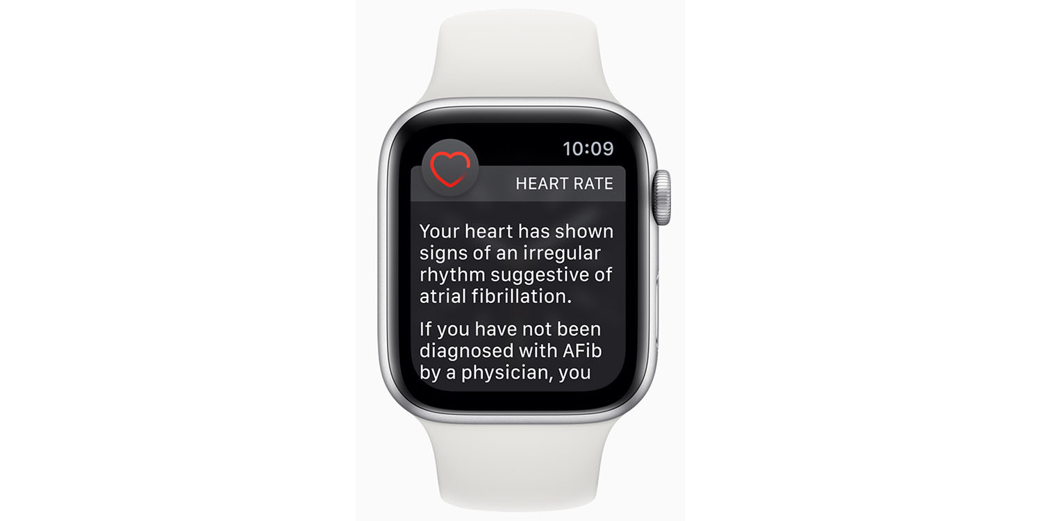 Apple Watch doesn't detect AFib 30-60% of time – studies - 9to5Mac